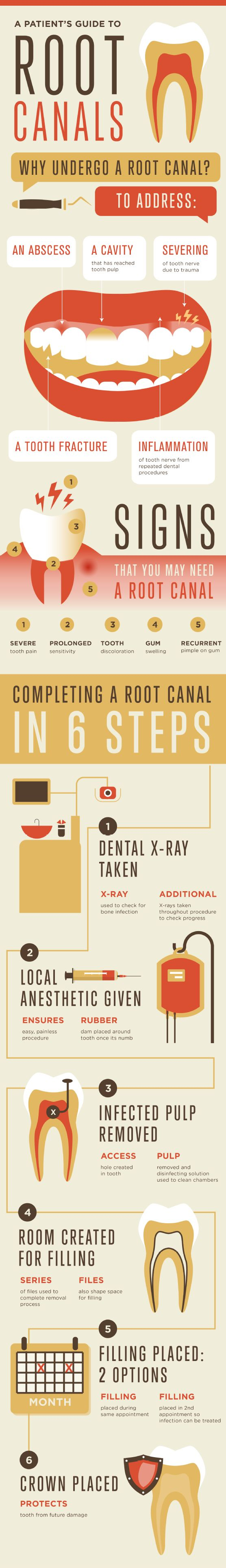 guild to root canals