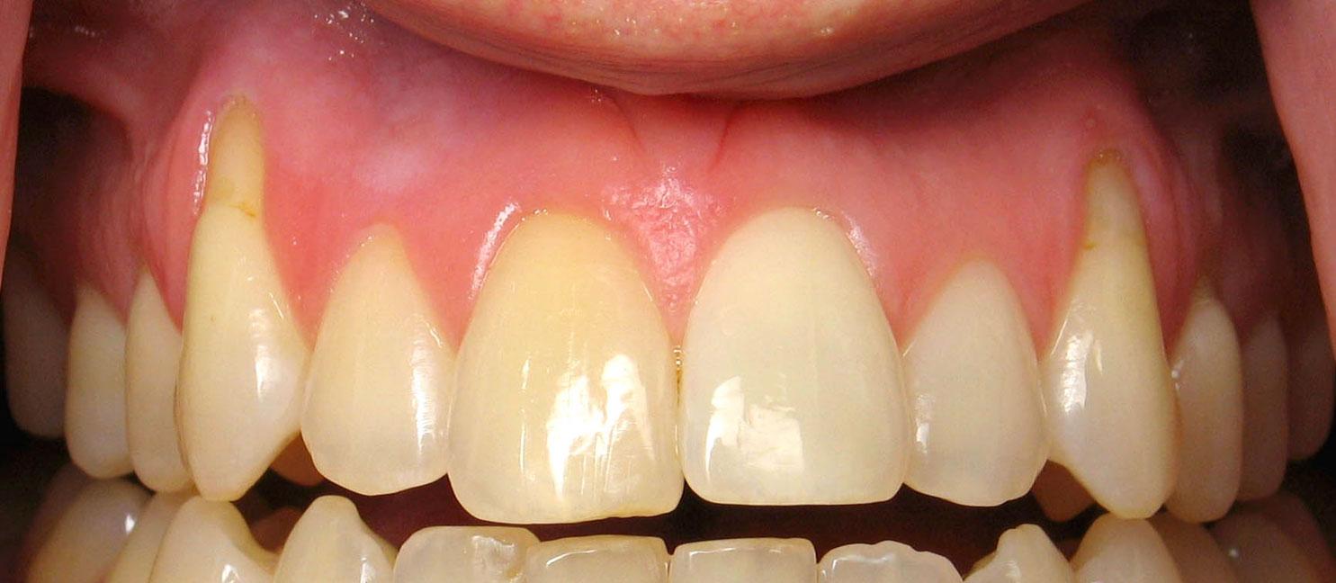 receding gums causes treatment surgery and prevention sappperton dental. Black Bedroom Furniture Sets. Home Design Ideas