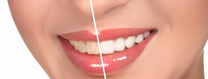 teeth whitening new westminster