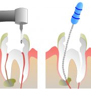 root canal new westminster