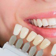 dental crown new westminster
